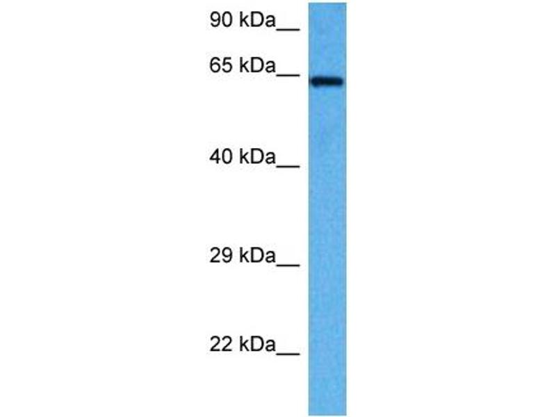 Western Blotting (WB) image for anti-Apoptosis-Inducing Factor, Mitochondrion-Associated, 1 (AIFM1) (C-Term) antibody (ABIN2778665)
