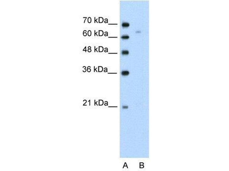 Western Blotting (WB) image for anti-Thymus High Mobility Group Box Protein (TOX) (N-Term) antibody (ABIN309708)