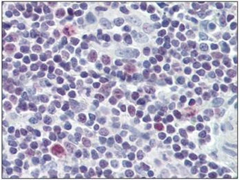 Immunohistochemistry (Paraffin-embedded Sections) (IHC (p)) image for anti-Baculoviral IAP Repeat-Containing 5 (BIRC5) antibody (ABIN5611620)