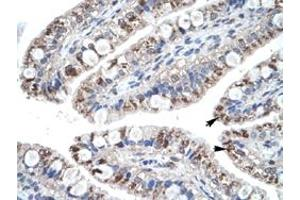 Image no. 2 for anti-Chemokine (C-C Motif) Ligand 18 (Pulmonary and Activation-Regulated) (CCL18) antibody (ABIN5573958)