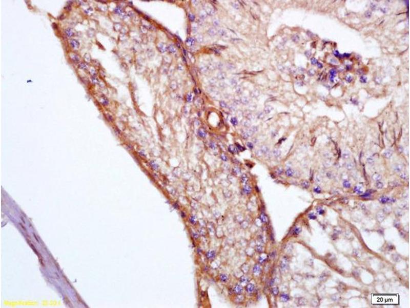 Immunohistochemistry (IHC) image for anti-Clusterin antibody (CLU) (AA 433-442) (ABIN685342)