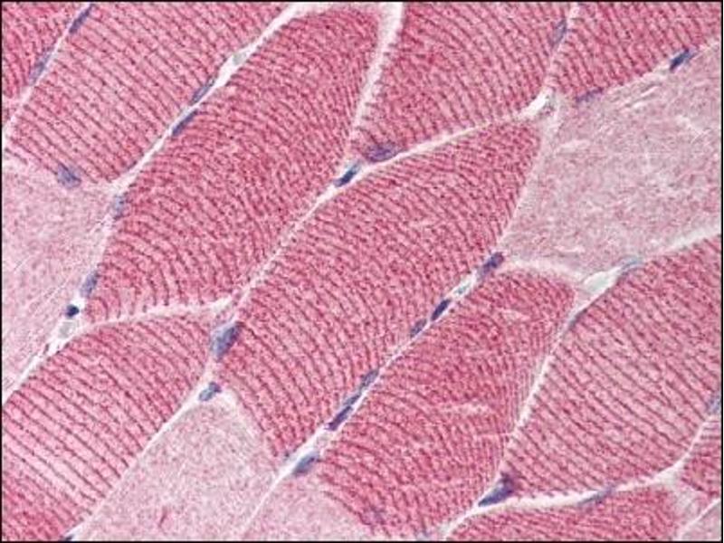 image for anti-TSC1 antibody (Tuberous Sclerosis 1) (Middle Region) (ABIN303311)