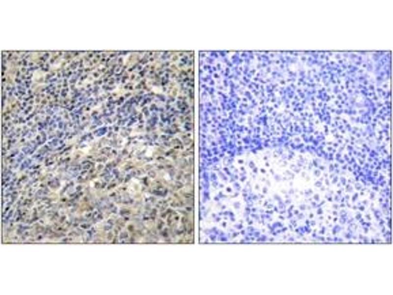 Immunohistochemistry (IHC) image for anti-NCF1 antibody (Neutrophil Cytosol Factor 1) (ABIN1532751)