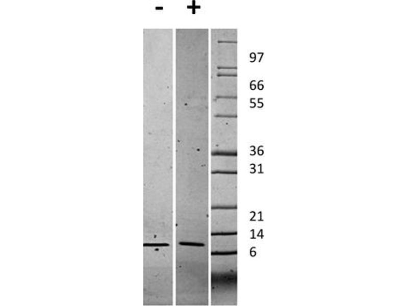 Image no. 2 for Chemokine (C-X-C Motif) Ligand 1 (Melanoma Growth Stimulating Activity, Alpha) (CXCL1) protein (ABIN6699664)