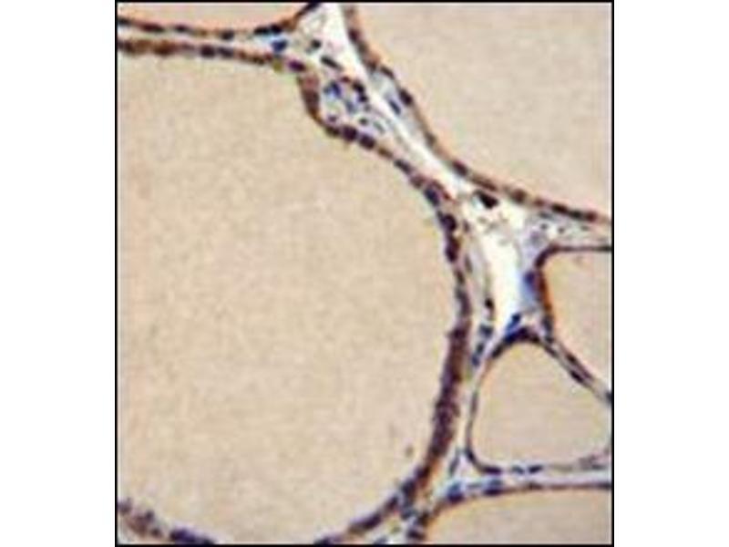 Immunohistochemistry (Paraffin-embedded Sections) (IHC (p)) image for anti-Serotonin Receptor 2B antibody (HTR2B) (AA 415-442) (ABIN954734)