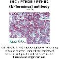 anti-PTH2R antibody (Parathyroid Hormone 2 Receptor) (N-Term)