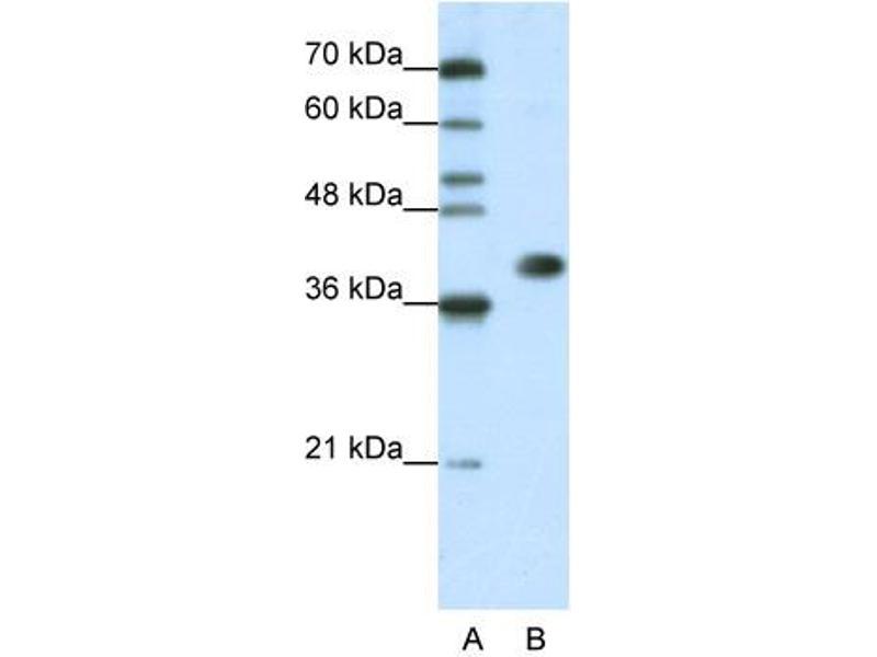 Western Blotting (WB) image for anti-Heterogeneous Nuclear Ribonucleoprotein A3 (HNRNPA3) (N-Term) antibody (ABIN2776678)