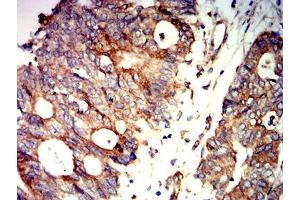 Immunohistochemistry (IHC) image for anti-Protein Kinase, AMP-Activated, beta 2 Non-Catalytic Subunit (PRKAB2) (AA 1-120) antibody (ABIN5611226)