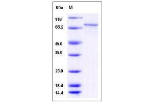 Image no. 1 for Calcium/calmodulin-Dependent Protein Kinase IG (CAMK1G) (AA 1-476) protein (GST tag,His tag) (ABIN2005493)