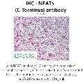 anti-NFAT5 antibody (Nuclear Factor of Activated T-Cells 5, Tonicity-Responsive)