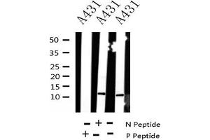 Image no. 1 for anti-Histone H4 (acLys8) antibody (ABIN6267914)