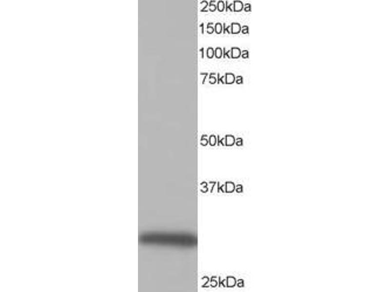 Western Blotting (WB) image for anti-NAD(P)H Dehydrogenase, Quinone 1 (NQO1) (C-Term), (all Isoforms) antibody (ABIN249473)