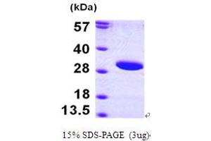 Image no. 1 for Sirtuin 3 (SIRT3) (AA 118-399) protein (His tag) (ABIN667166)