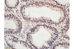 Immunohistochemistry (Paraffin-embedded Sections) (IHC (p)) image for anti-C-JUN antibody (Jun Proto-Oncogene) (AA 50-80) (ABIN742913)