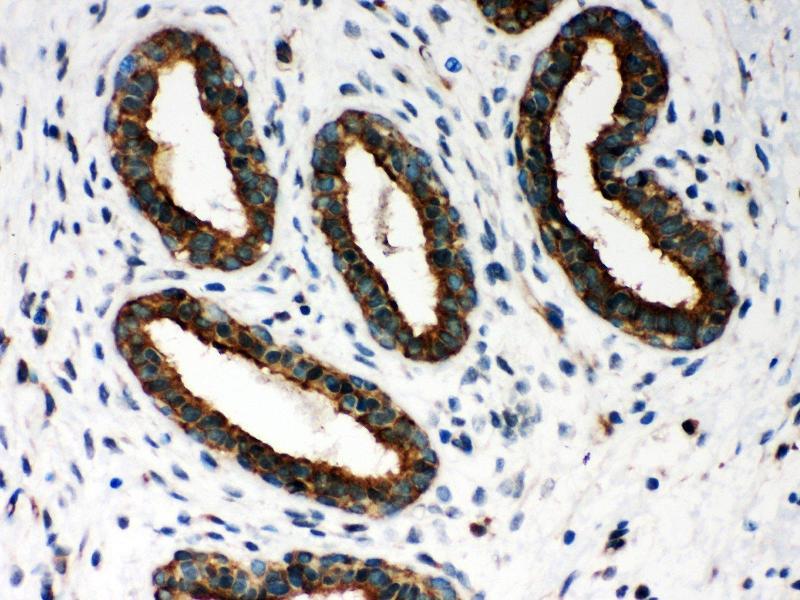 Immunohistochemistry (IHC) image for anti-Peroxiredoxin 1 antibody (PRDX1) (AA 100-128) (ABIN3043903)