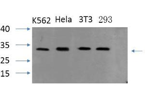 Image no. 1 for anti-Steroid Sulfatase (STS) antibody (ABIN5962406)