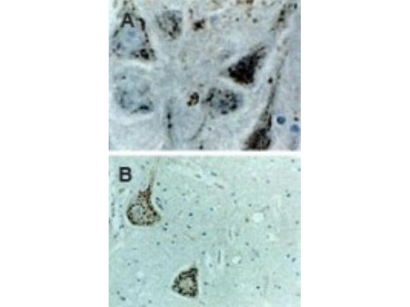 Immunohistochemistry (Paraffin-embedded Sections) (IHC (p)) image for anti-Caspase 9 antibody (Caspase 9, Apoptosis-Related Cysteine Peptidase) (ABIN4288194)