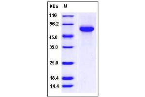 Image no. 1 for Fetuin B (FETUB) (AA 1-382) protein (His tag) (ABIN2004819)