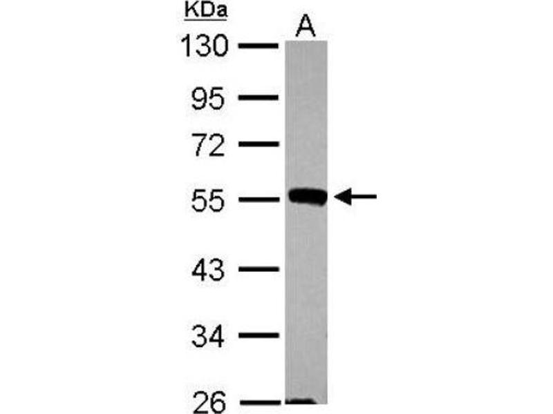 Western Blotting (WB) image for anti-MAPK9 antibody (Mitogen-Activated Protein Kinase 9) (Center) (ABIN440950)