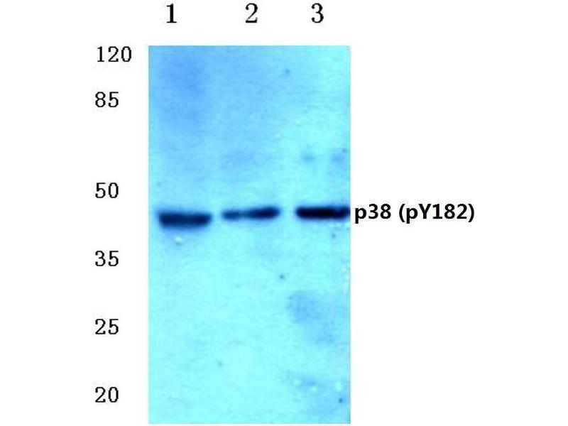 Western Blotting (WB) image for anti-MAPK14 antibody (Mitogen-Activated Protein Kinase 14) (pTyr182) (ABIN498749)