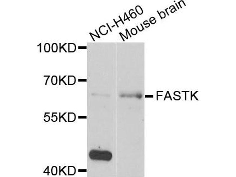 Image no. 2 for anti-Fas-Activated serine/threonine Kinase (FASTK) antibody (ABIN2562545)