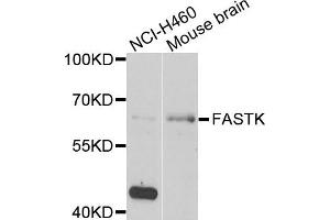 Image no. 2 for anti-Fas-Activated serine/threonine Kinase (FASTK) antibody (ABIN2562545)
