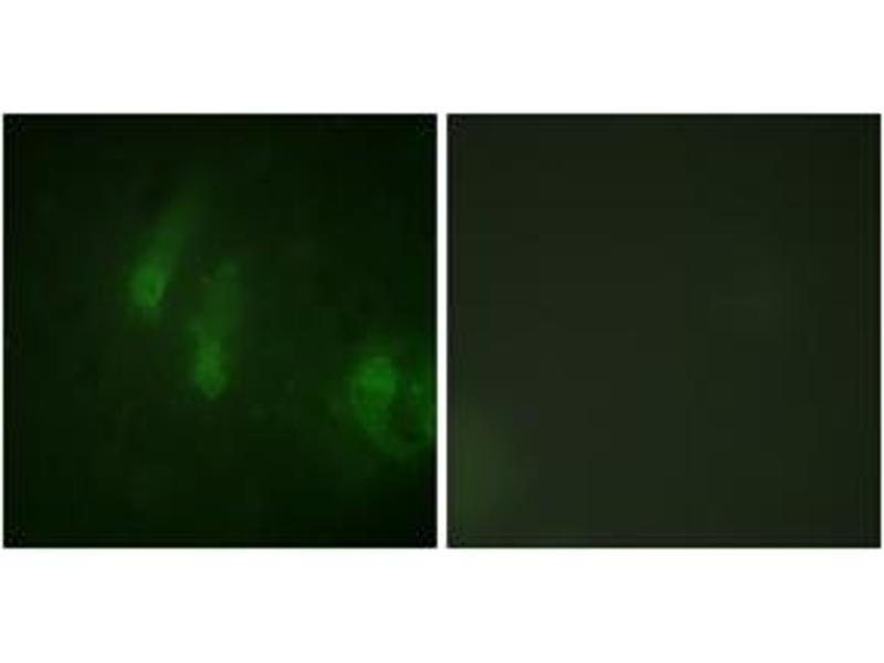 Image no. 3 for anti-Fanconi Anemia Group A Protein (FANCA) (AA 1121-1170), (pSer1149) antibody (ABIN1531711)