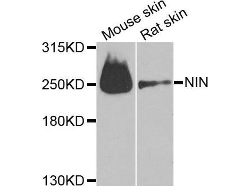 Western Blotting (WB) image for anti-Ninein (GSK3B Interacting Protein) (NIN) antibody (ABIN2737251)