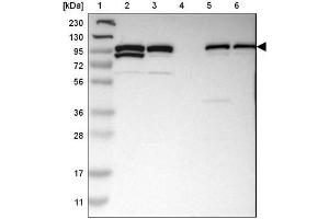 Western Blotting (WB) image for anti-PDCD6IP antibody (Programmed Cell Death 6 Interacting Protein) (ABIN4279376)