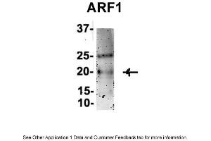 Immunoprecipitation (IP) image for anti-ADP-Ribosylation Factor 1 (ARF1) (Middle Region) antibody (ABIN2783267)