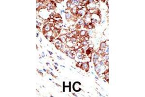 Image no. 2 for anti-Protein Inhibitor of Activated STAT, 1 (PIAS1) (AA 607-637), (C-Term) antibody (ABIN388055)