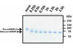 SDS-PAGE (SDS) image for Matrix Metalloproteinase 2 (MMP2) (C-Term), (AA 34-662) (Active) Protein (ABIN2666506)