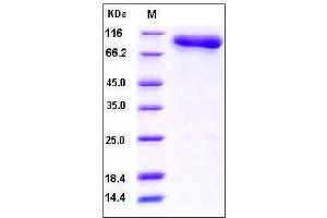 image for Complement C2 (AA 1-752) (Active) protein (His tag) (ABIN2002185)