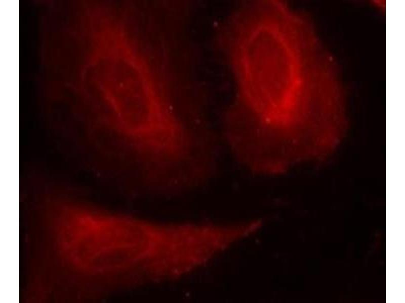 Immunofluorescence (IF) image for anti-PDPK1 antibody (3-phosphoinositide Dependent Protein Kinase-1) (pSer241) (ABIN4344570)