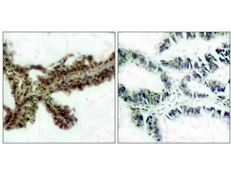 Immunohistochemistry (Paraffin-embedded Sections) (IHC (p)) image for anti-V-Akt Murine Thymoma Viral Oncogene Homolog 1 (AKT1) (pThr308) antibody (ABIN6579882)