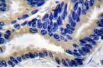 Immunohistochemistry (Paraffin-embedded Sections) (IHC (p)) image for anti-Caspase 3 Antikörper (Caspase 3, Apoptosis-Related Cysteine Peptidase) (ABIN498946)