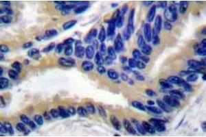 Immunohistochemistry (Paraffin-embedded Sections) (IHC (p)) image for anti-Caspase 3, Apoptosis-Related Cysteine Peptidase (CASP3) antibody (ABIN498946)
