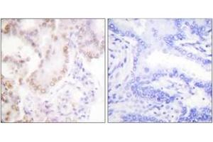 Immunohistochemistry (IHC) image for anti-Cyclin G1 antibody (CCNG1) (ABIN1533251)