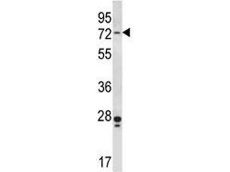 Western Blotting (WB) image for anti-PAK4 antibody (P21-Activated Kinase 4) (AA 187-216) (ABIN3032118)