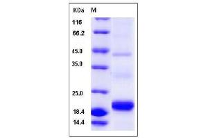 Image no. 1 for Platelet-Derived Growth Factor C (PDGFC) (AA 235-345), (Mature) protein (His tag) (ABIN2002489)