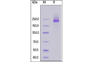 Image no. 1 for Lymphocyte Antigen 75 (LY75) (AA 28-1667) protein (His tag) (ABIN6992339)