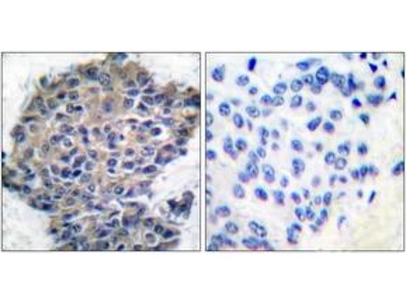 Immunohistochemistry (IHC) image for anti-Filamin A antibody (Filamin A, alpha) (pSer2152) (ABIN1531228)