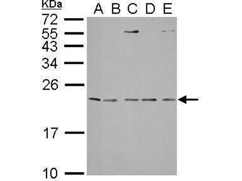 Western Blotting (WB) image for anti-IL1RN antibody (Interleukin 1 Receptor Antagonist) (ABIN2489457)