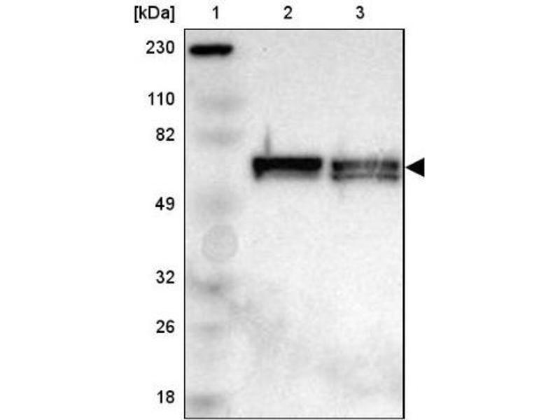 Western Blotting (WB) image for anti-P21-Activated Kinase 1 (PAK1) antibody (ABIN4343458)