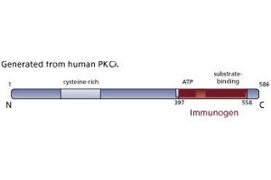 image for anti-PKC iota antibody (Protein Kinase C, iota) (AA 397-558) (ABIN967826)