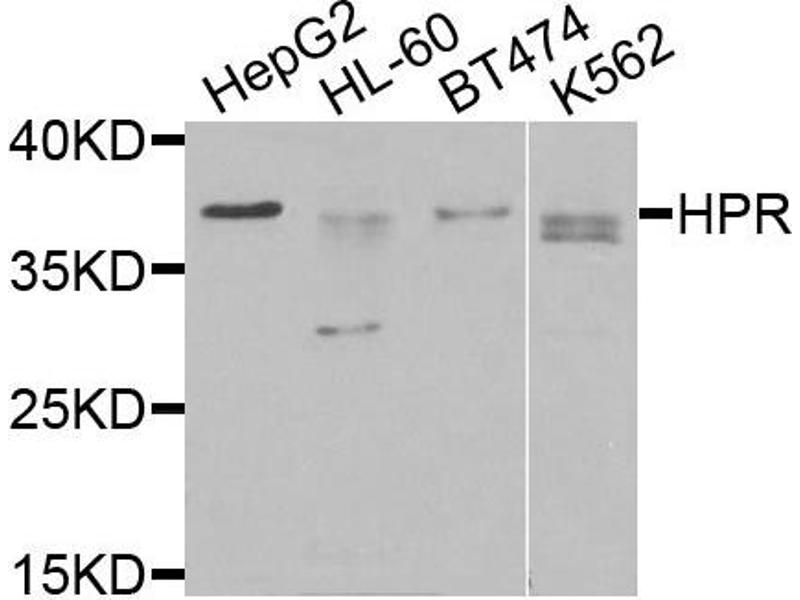 Western Blotting (WB) image for anti-Haptoglobin Related Protein (HPR) antibody (ABIN4903962)