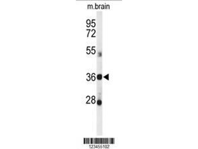 Western Blotting (WB) image for anti-D-Aspartate Oxidase (DDO) (AA 102-130), (Center) antibody (ABIN650991)
