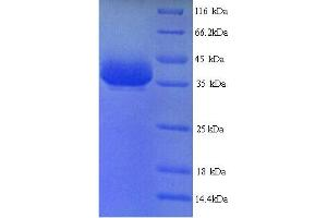Image no. 1 for Y Box Binding Protein 1 (YBX1) (AA 2-322) protein (His tag) (ABIN5713952)