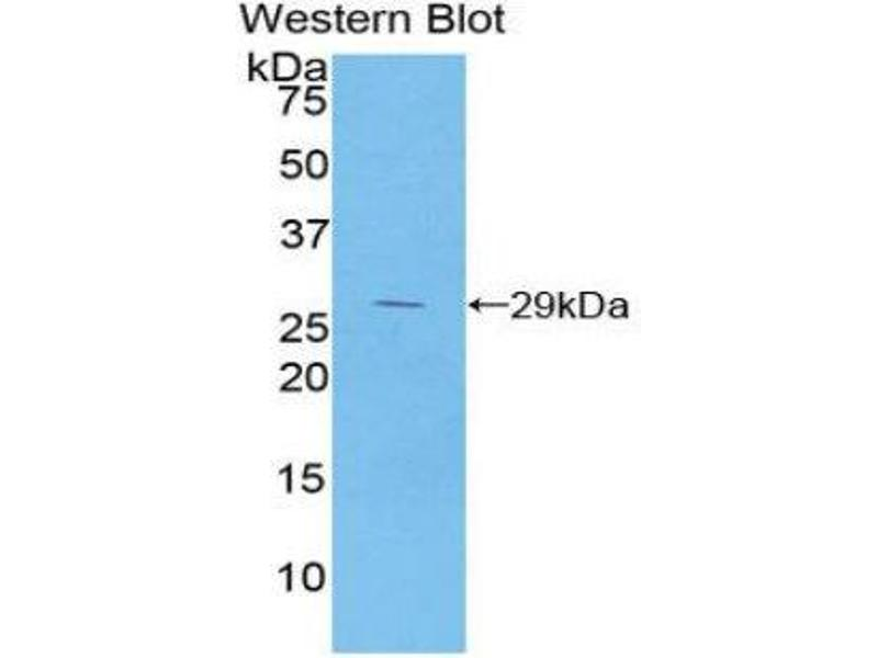 Western Blotting (WB) image for anti-Nuclear Factor of kappa Light Polypeptide Gene Enhancer in B-Cells Inhibitor, beta (NFKBIB) (AA 117-345) antibody (ABIN1859318)