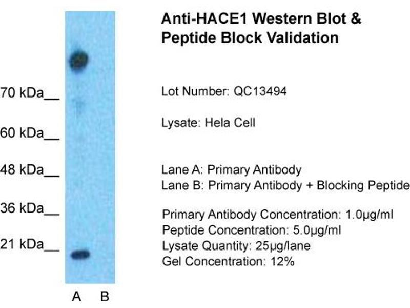 Western Blotting (WB) image for anti-HECT Domain and Ankyrin Repeat Containing, E3 Ubiquitin Protein Ligase 1 (HACE1) (Middle Region) antibody (ABIN405544)